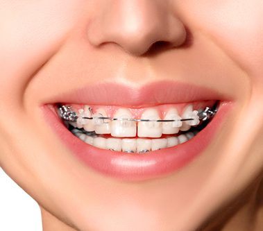 Ortodoncia estética con Brackets Cerámica