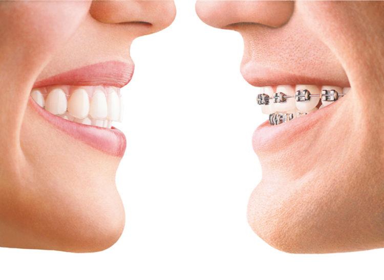 Ortodoncia con alineadores transparentes Invisalign