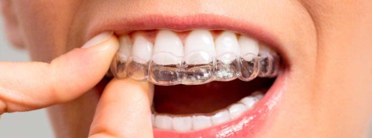 aparatos de ortodoncia invisibles Granada