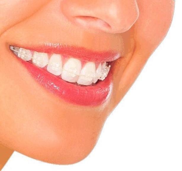 aparato de ortodoncia invisibles en Granada