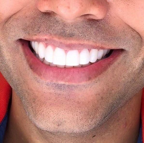duracion-tratamiento-ortodoncia
