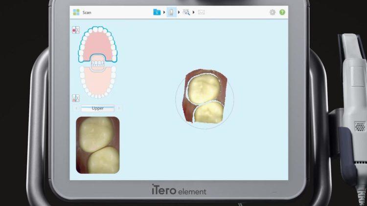 Aparato ortodoncia digital