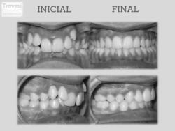 Invisalign antes y después: Clase-II mordida profunda