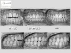 MA anterior y MC lateral con Invisalign Lite