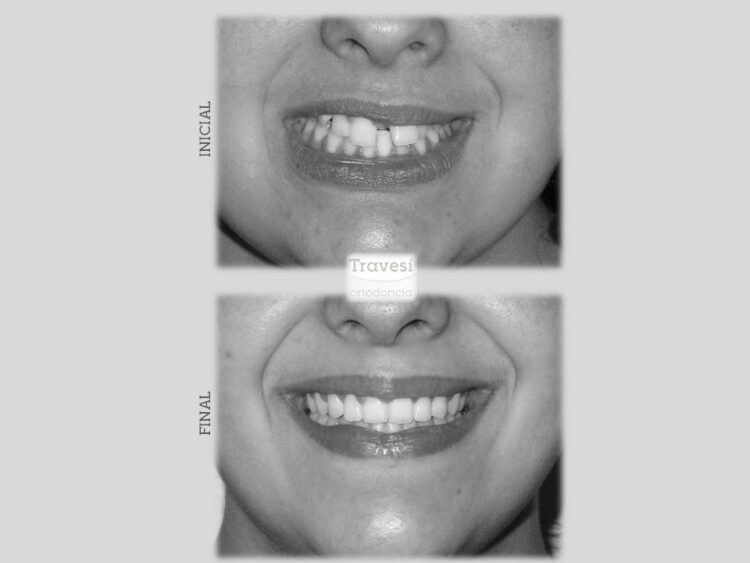 Sonrisa Diastema severo