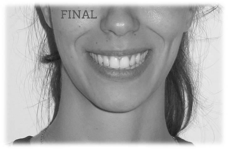 Lite Clase II 2ª Sonrisa final