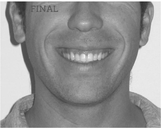 invisalign antes después lite compresión arcadas sonrisa final