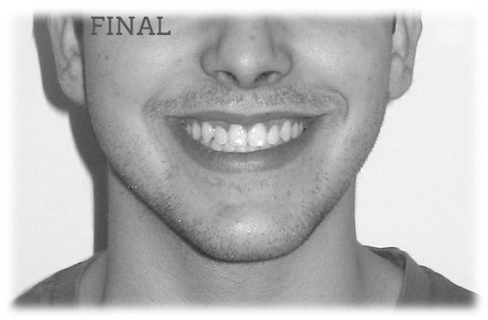 invisalign antes después retratamiento mordida abierta sonrisa final