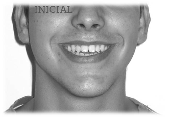 invisalign antes después retratamiento mordida abierta sonrisa inicial