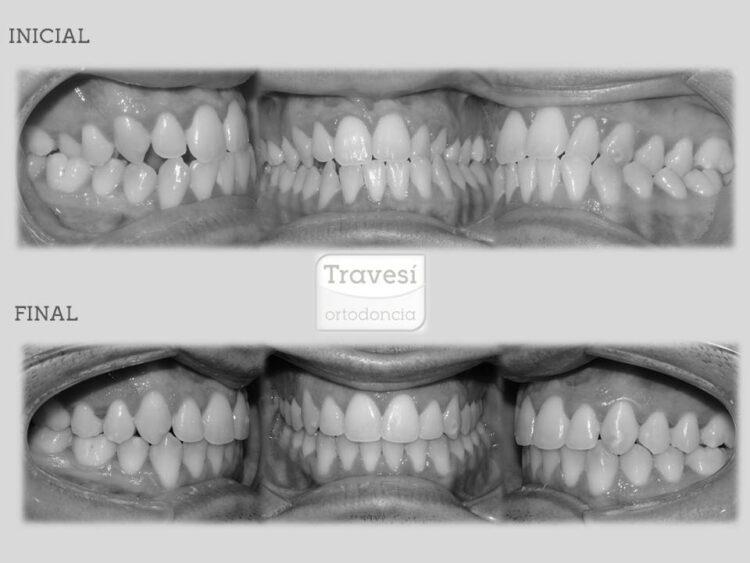 Clase III asimétrica con mordida cruzada anterior y lateral