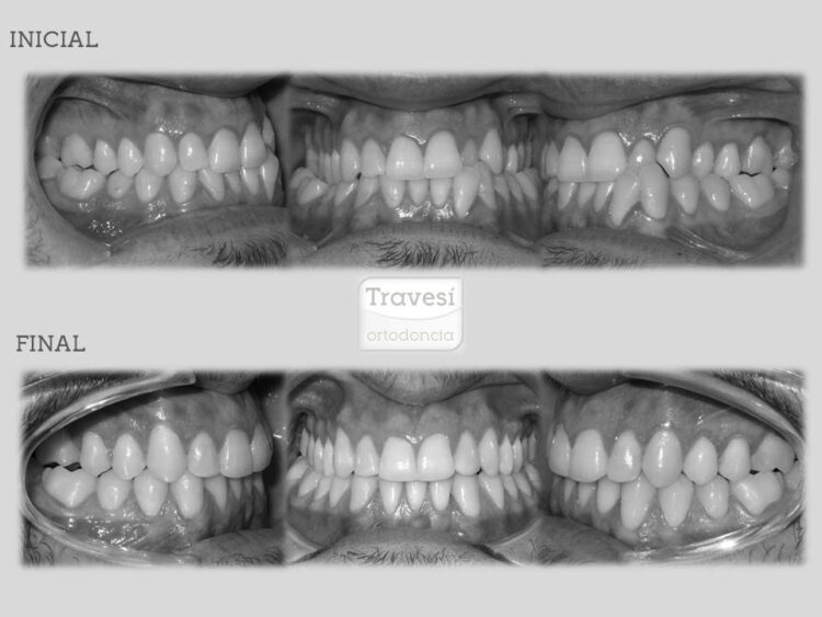 Clase-III con compresión maxilar y exodoncia de un incisivo inferior
