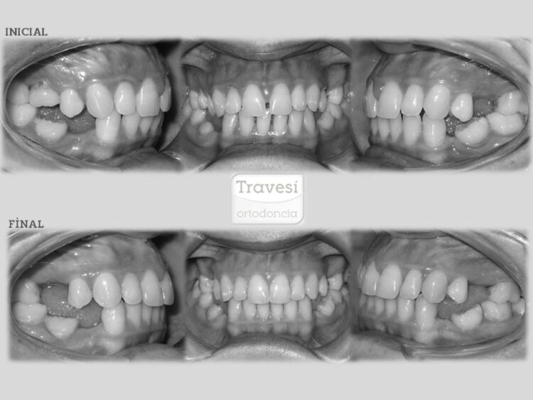 Distribución de espacios para implantes
