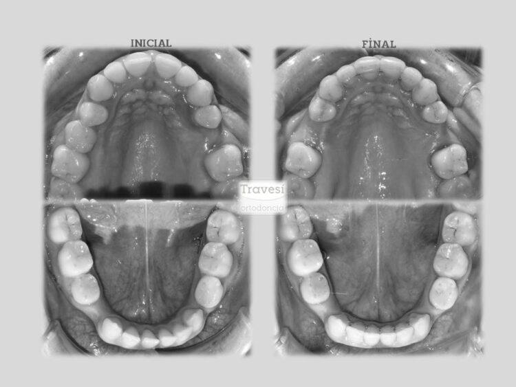 Distribución para implantes