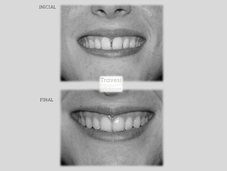 Diastema central sonrisa