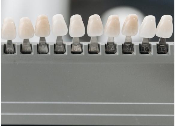 ¿se pueden caer los dientes con ortodoncia?
